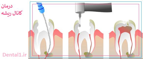 درمان کانال ریشه