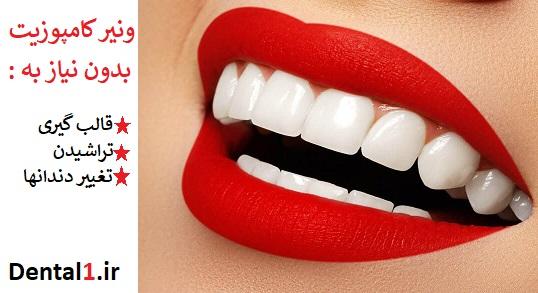 در ونیر کامپوزیت نیازی به تراش دندان ، قالب گیری و تغییر دندان نیست