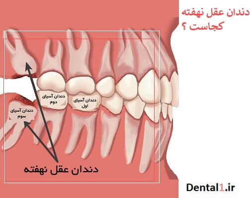 کشی دن دندان عقل نهفته و پنهان