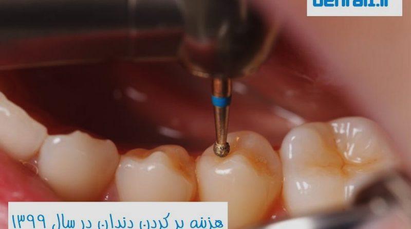 هزینه پرکردن دندان