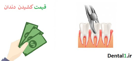قیمت کشیدن دندان