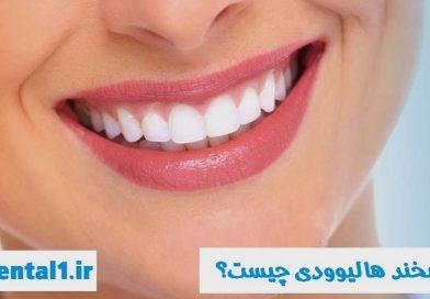 لبخند هالیوودی چیست