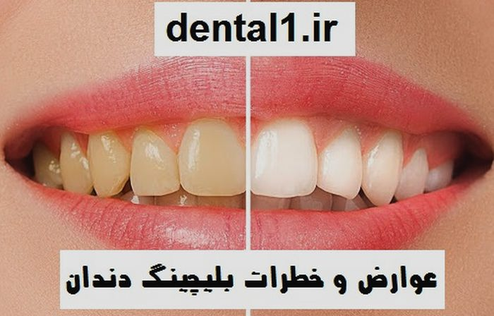 عوارض و خطرات بلیچینگ دندان
