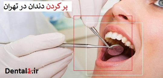 پر کردن دندان در تهران