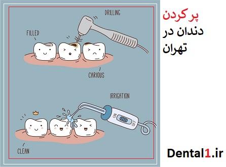 پر کردن دندان مراحل