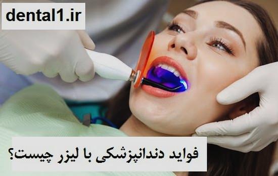 فواید دندانپزشکی با لیزر