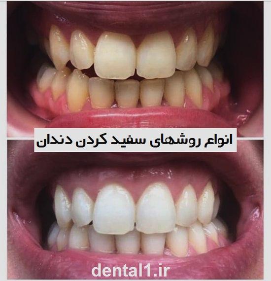 انواع روشهای سفید کردن دندان
