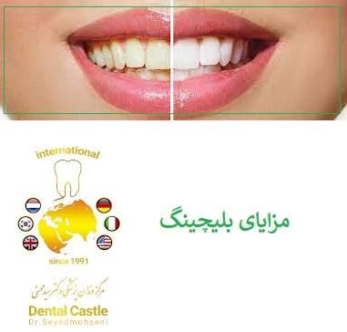 فقط عوامل سفید کننده دندان می توانند لکه های خارجی سرسخت و لکه های داخلی ناخوشایند را که باعث تغییر رنگ دندان می شوند از بین ببرند