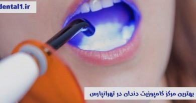 بهترین مرکز کامپوزیت دندان در تهرانپارس