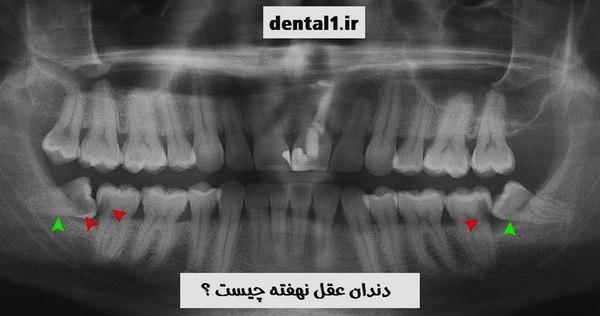 دندان عقل نهفته چیست
