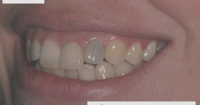 علت تیره شدن دندان و درمان آن