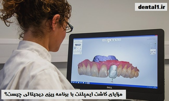 ایمپلنت دندان دیجیتالی چیست