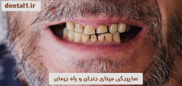 ساییدگی مینای دندان و راه درمان