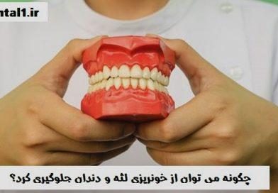 خونریزی لثه و دندان نشانه چیست