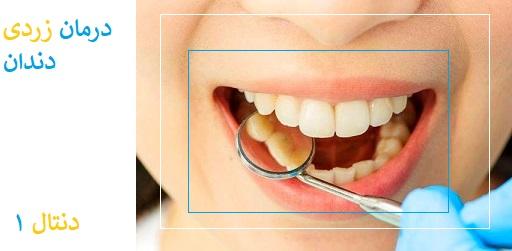سفید کردن دندان های زرد بر اثر سیگار