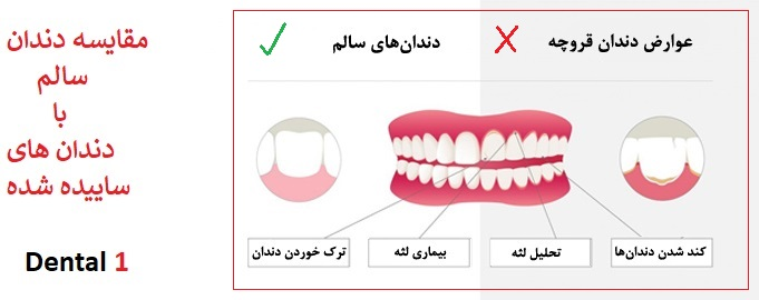 درمان ساییدگی مینای دندان