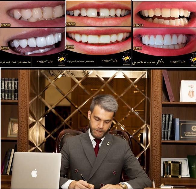 کامپوزیت دندان در دندانپزشکی زیبایی دکتر سید حسنی متخصص لمینت و کامپوزیت طرح لبخند در شرق غرب شمال تهران