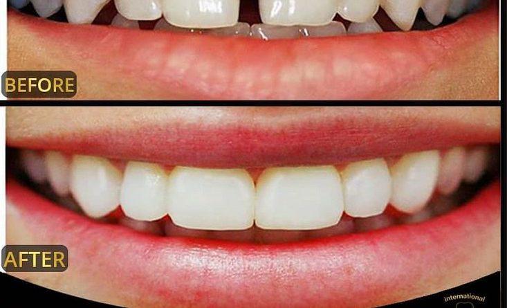 عکس قبل وبعد از لمینت و کامپوزیت دندان طراحی لخند در تهران