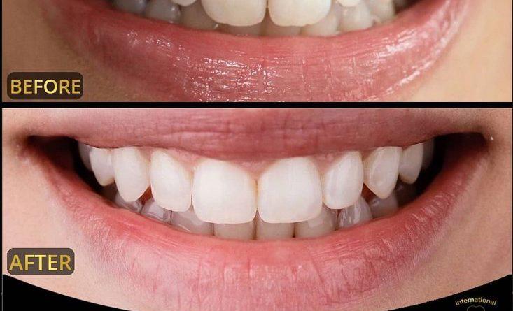 عکس قبل و بعد لبخند هالیودی ونیر کامپوزیت و لمینت دکتر دندانپزشکی در تهران