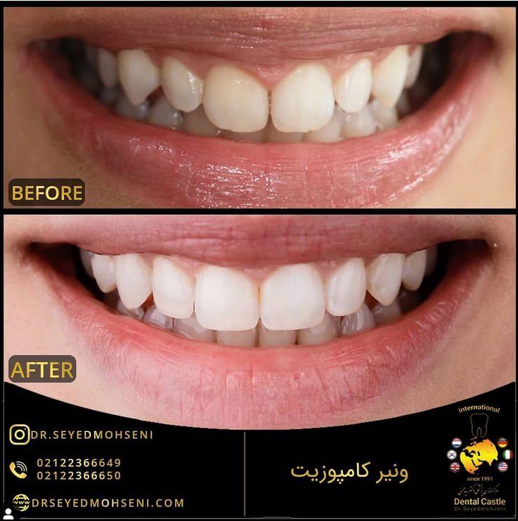 قیمت لمینت و کامپوزیت در دندانپزشکی زیبایی تهران