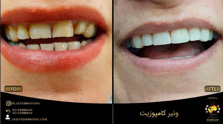 قبل و بعد ونیر کامپوزیت بعد از کامپوزیت چه شکلی میشوم دندانپزشکی زیبایی دکتر سید محسنی