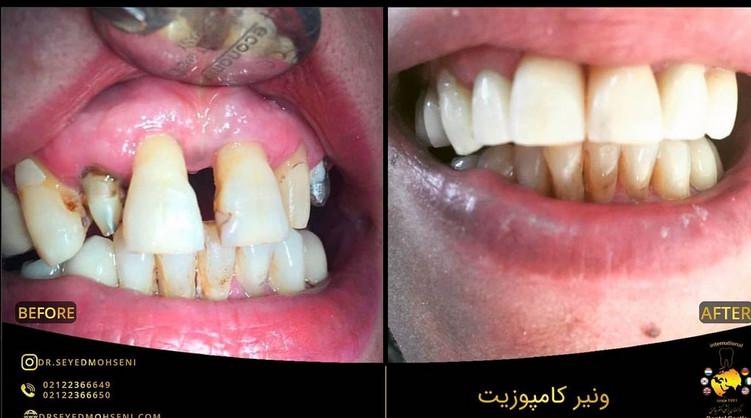 عکس قبل و بعد دندانپزشکی زیبایی ونیر کامپوزیت