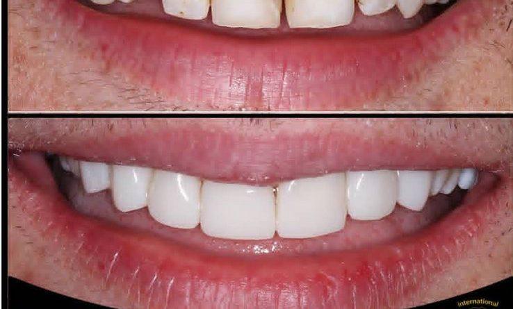 کامپوزیت دندان عکس قبل و بعد در مطب دندانپزشکی