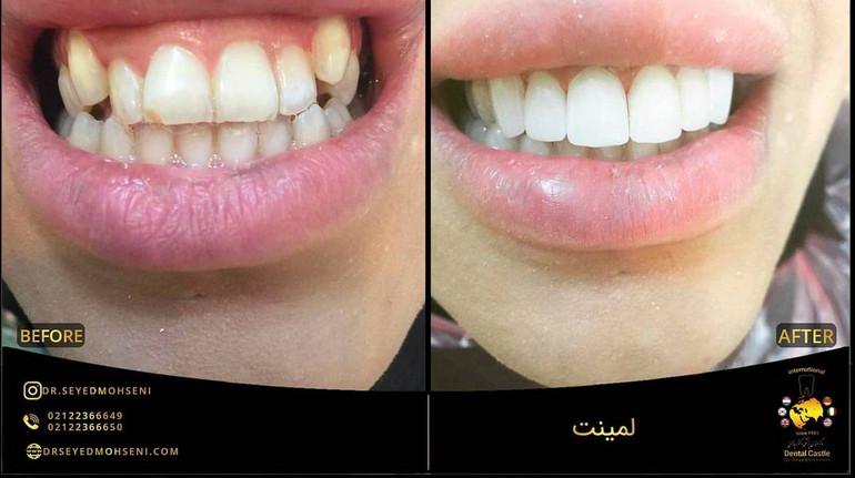 کامپوزیت دندان قبل و بعد دندان نیش ترمیم