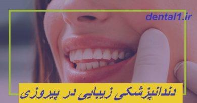 دندانپزشکی زیبایی در پیروزی