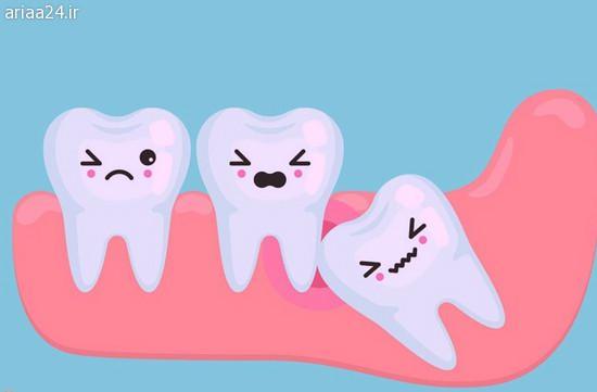 زمان کشید دندان عقل