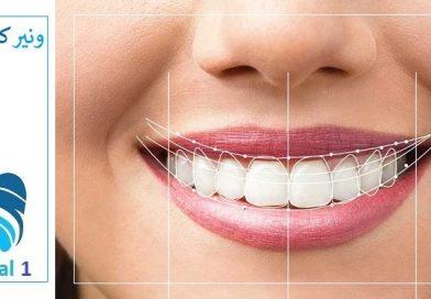 آیا کامپوزیت دندان درد دارد ؟