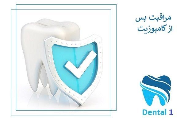 مراقبت های پس از درمان با کامپوزیت دندان کدامند