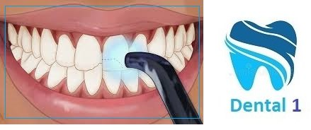 آیا کامپوزیت دندان درد دارد