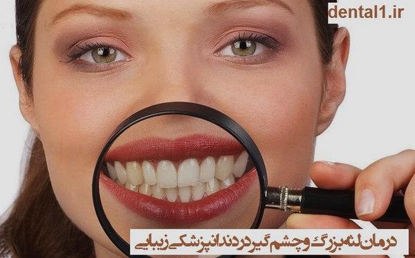 درمان لثه بزرگ و چشم گیر در دندانپزشکی زیبایی