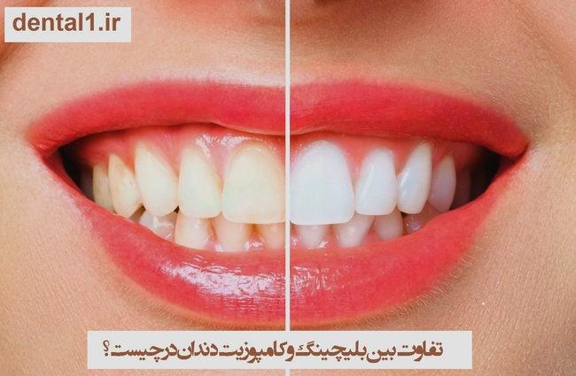 تفاوت بین بلیچینگ و کامپوزیت دندان