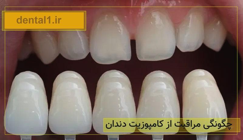 چگونگی مراقبت از کامپوزیت دندان