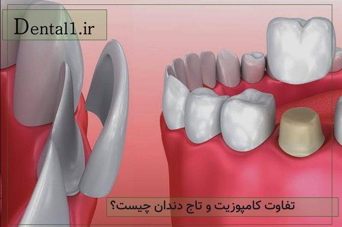 تفاوت کامپوزیت و تاج دندان چیست