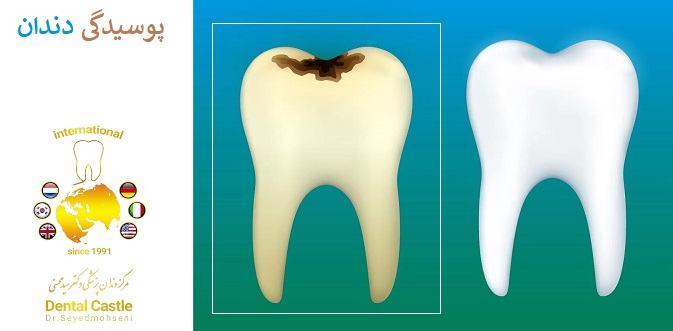 پوسیدگی در دندان ها